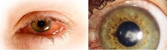 infecciones ojos