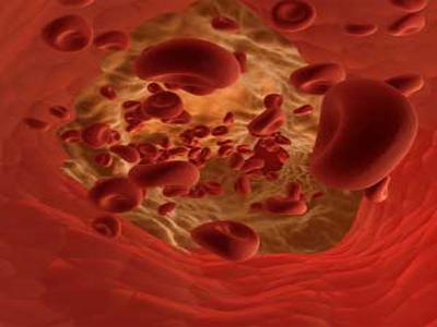 hemoglobina glicosilada HbA1c