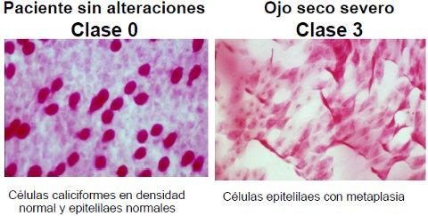citologia ocular