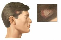 Para los cabellos para las rubias contra la caída de los cabello